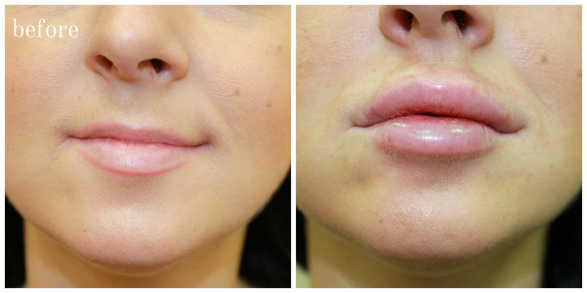 lip 14